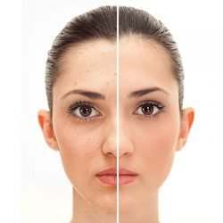 It-boosts-collagen-production,-as-well-as-helps-reduce-fine-lines-and-dark-circles.