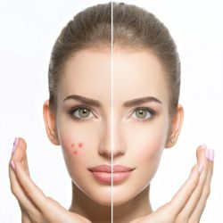 Gently-and-effectively-prevents,-cures-and-heals-acne,-and-lightens-acne-scars