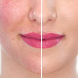 face pack for acne scars india | good face wash for acne | natural face cleanser for acne | natural face wash for acne